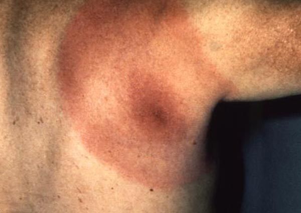 A circular rash such as this may indicate you have Lyme disease. Even if you don't know you were bitten by a tick or have other symptoms you should see a doctor immediately.