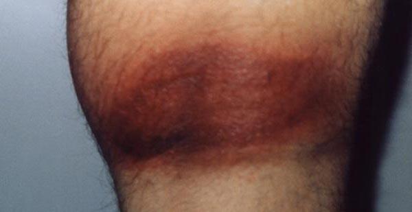 This dark rash was the result of Lyme disease.
