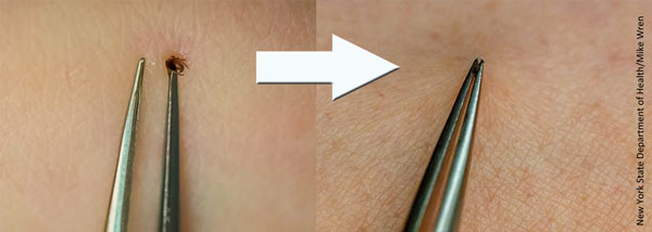 This image shows the proper way to grab and remove ticks with tweezers