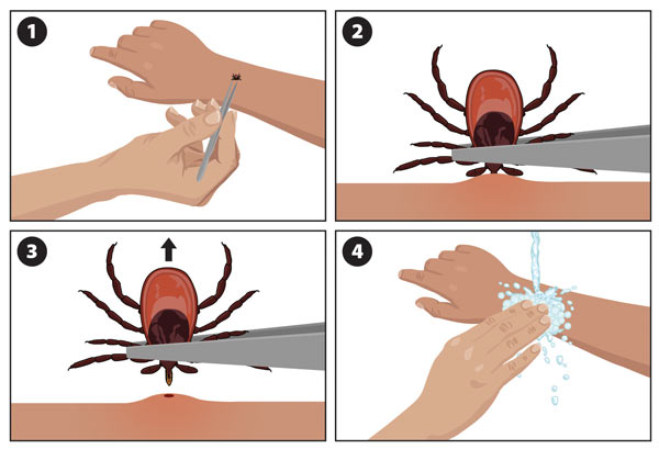 To remove a tick, use tweezers to grasp it at the point of attachment and pull upwards.